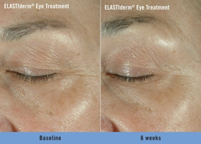 ELASTIderm Eye Treatment